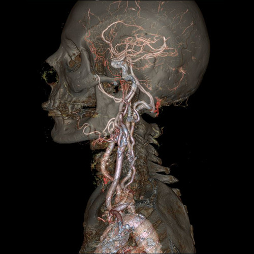 The skull and carotid arteries. Image Credit: GE Healthcare