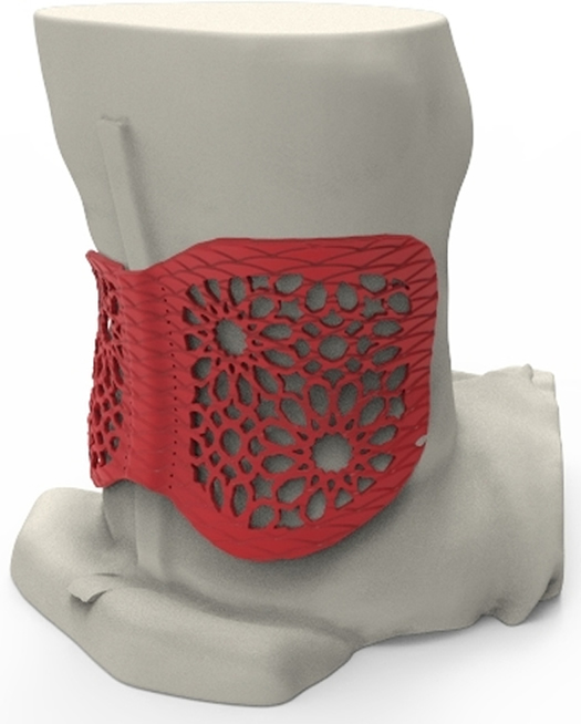 Using a 3D scan of Rožkova's lower back, Baltic3D, a Stratasys Latvian reseller, designed and 3D printed a back brace customized specifically to her middle spine, overcoming the discomfort and limited movement found in conventional supports (Photo: Business Wire)
